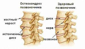 Боль в груди и в спине почему болит грудная клетка посередине и спина