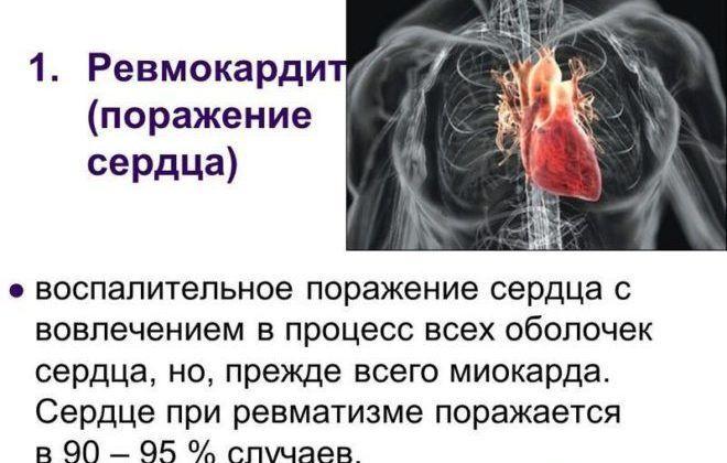 Инфаркт миокарда и инсульт одновременно лечение