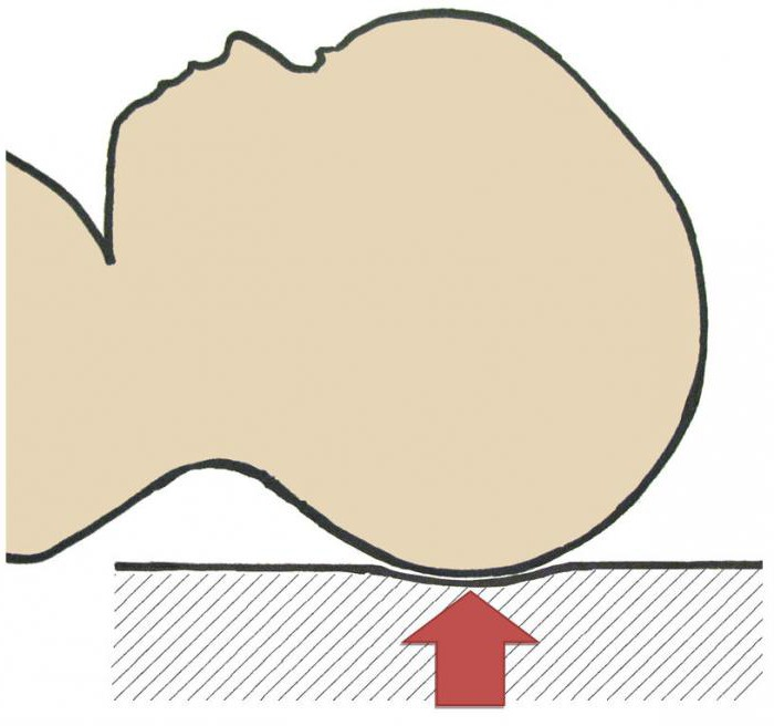 У грудничка неправильная форма головы