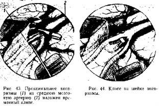 Сосуды головного мозга: симптомы, лечение. Врождённые аномалии сосудов головного мозга