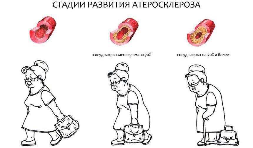Сосудистая головная боль: симптомы, причины, лечение