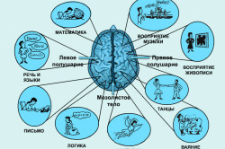 Ишемический инсульт - левая сторона: последствия