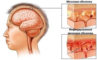 Тошнота усталость головная боль
