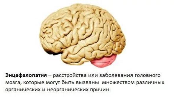 Discirculatory beyin ensefalopati 6